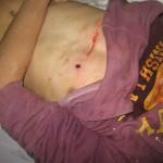 Mohammed Qaddous' chest (Photo: Salma aDeb'i, B'Tselem)