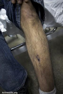 Omar's leg.