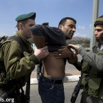 Marwan Farrarjah shows marks on his back after he was violently arrested by Israeli soldiers