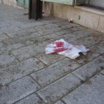 Bloody rags after a Palestinian boy was attacked by Israeli settlers