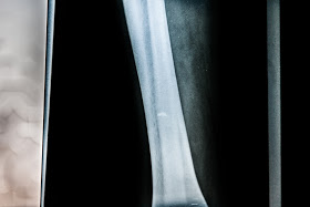 An X-ray showing the piece of shrapnel embedded in Omar´s leg (white spot).