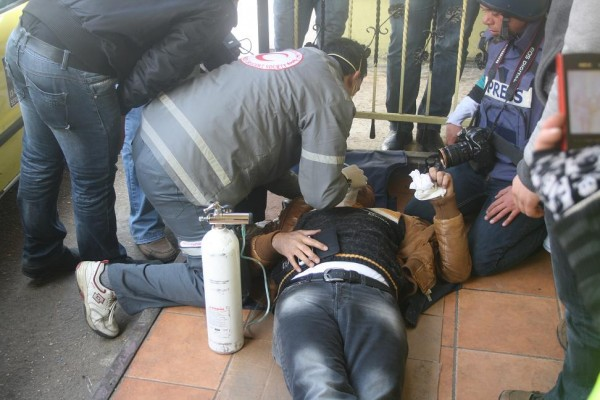 Journalist treated for teargas inhalation