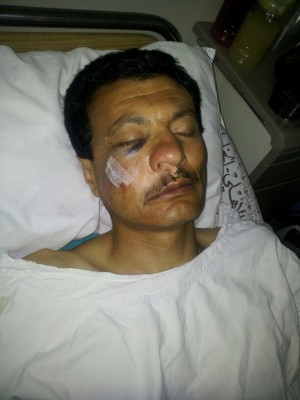 Demonstrator Ameen Bayed after having been hit in the face with a tear gas canister.