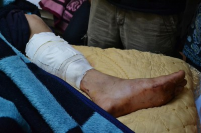 Jamil's leg after having been shot - photo by Rosa Schiano