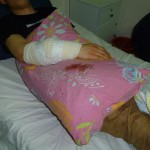 Fadi Abu-A'sr was shot in the lower arm.