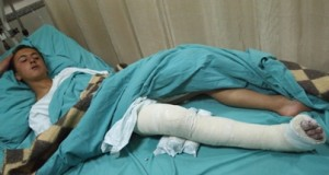 Qaryut 13-year-old attacked, hospital pic