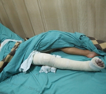 The young Qaryut boy here has his entire right leg in a cast, expecting a potential surgery.