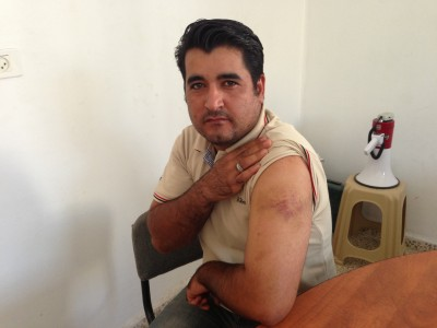 One of the workers shows his bruises after a settler attack (Photo by ISM)