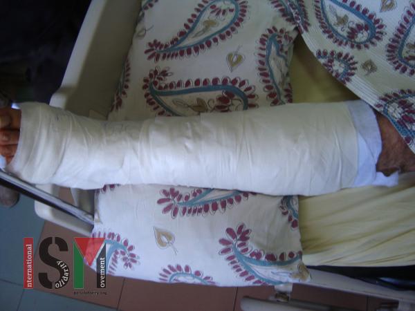 1Bashar leg wound