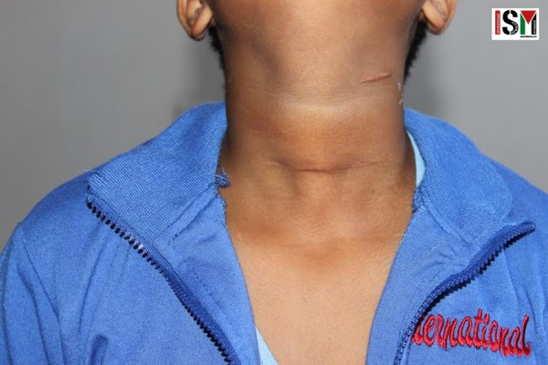 Mohamed with visible scars on his neck.