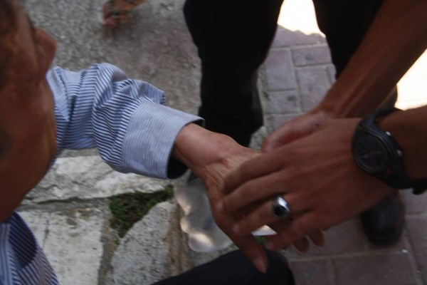 Hisham's hand showing scars from the operation. Photo credit: Youth against settlement
