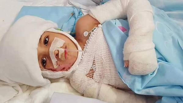 4 year old Ahmad Dawabshe is still in the hospital.