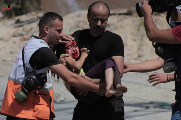 3-year old girl shot with rubber-coated steel bullet by Israeli forces