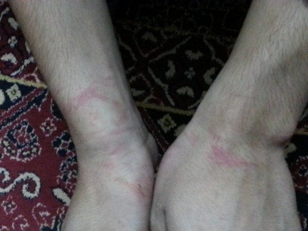 19 year old Palestinian man detained, handcuffed and blindfolded for five hours shows the injuries to his wrists during Israeli military detention in al-Khalil