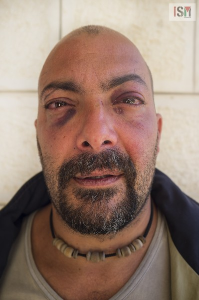 Italian acitivist Antonio Fresta photographed day after been arrested and beaten by the police.