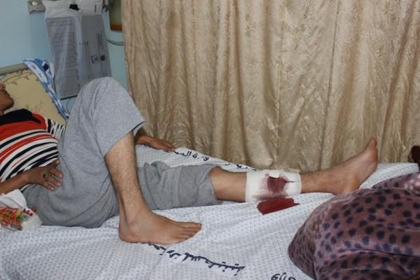 Mohamed Abu Taima in hospital.