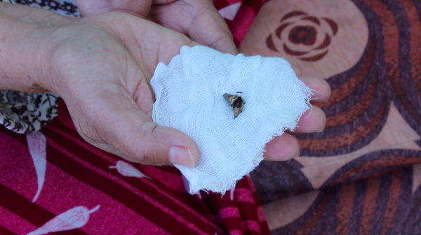 Rajab's mother shows the bullet removed from his leg