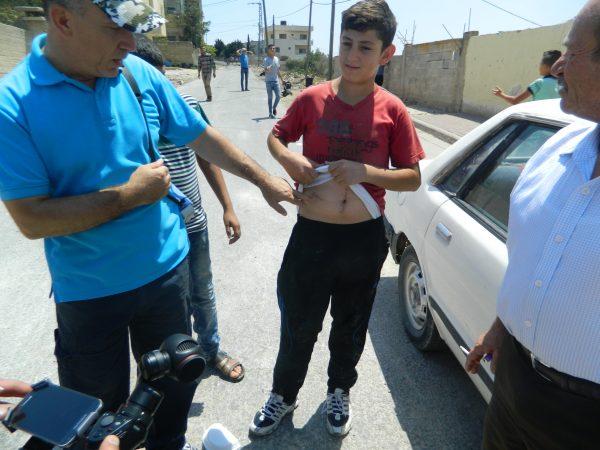 Muhammad, a 15 year old boy, who was shot in the stomach by Israeli soldiers during clashes in early July.