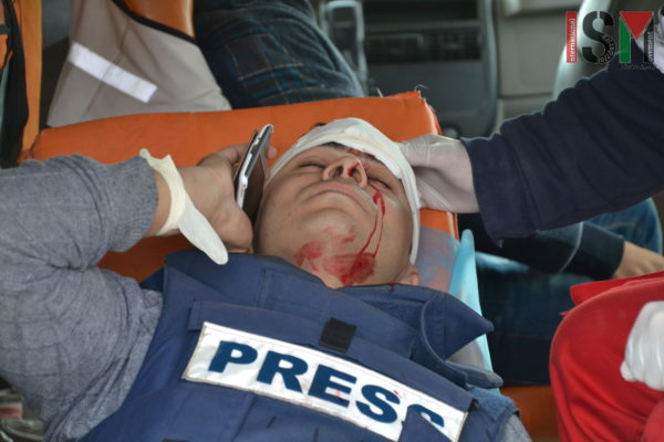 Palestinian journalist shot in the face by Israeli Forces with rubber coated steel bullets.