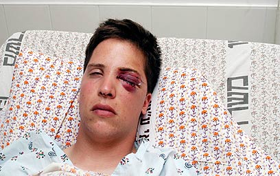 Matan Cohen after being shot in the eye by a 'rubber bullet'