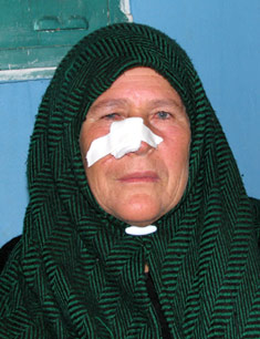 Hilwe, the Palestinian grandmother shot in the face by soldiers invading her village.